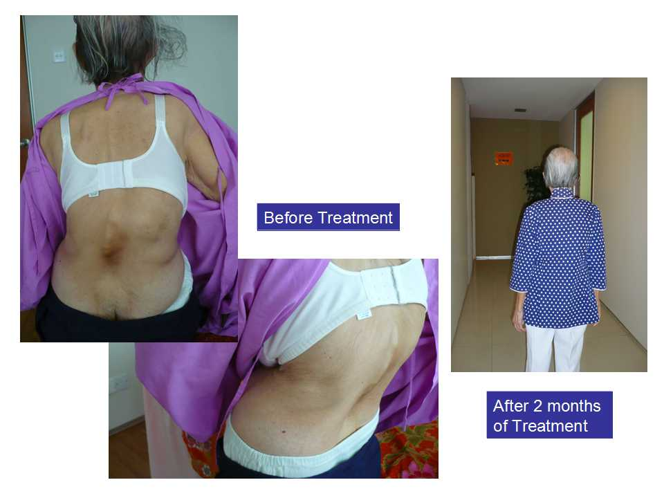 Result of WMQ treatment
